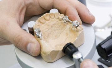 Manufacturing of a dental artificial limb